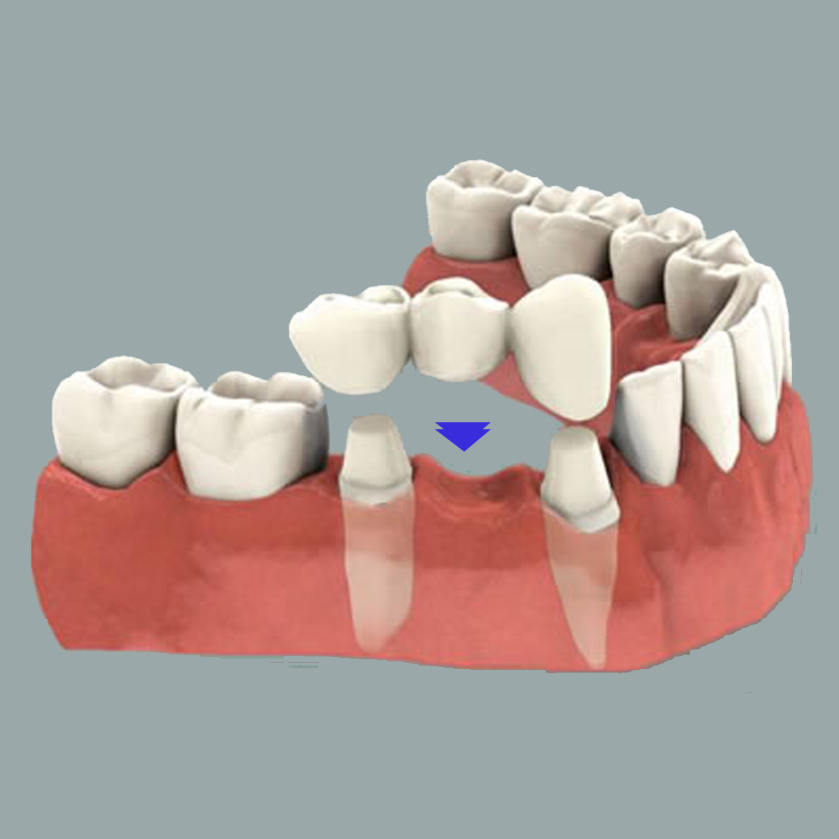 Pros and cons of dental prosthetics 87