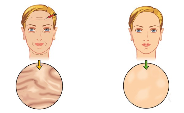 Neck Lift Guide Pros Cons Side Effects Scars And After Care
