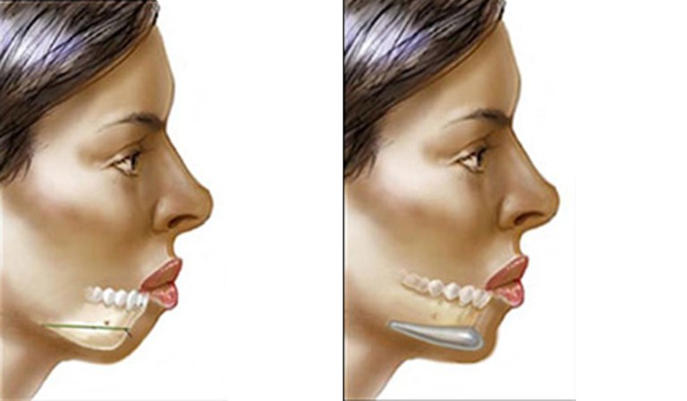Image result for Jaw Implants procedure