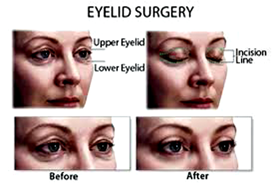 Eyelid Surgery Guide : Pros Cons, Side Effects, Scars and After Care